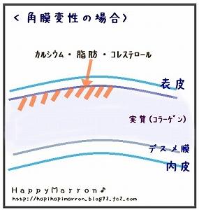 角膜変性3