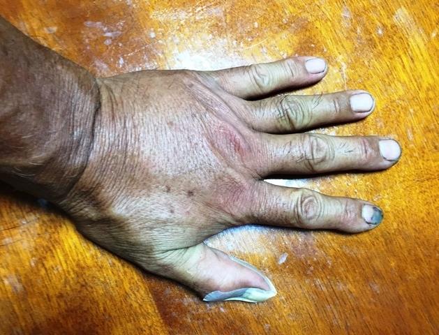 小型の蜂に刺された手