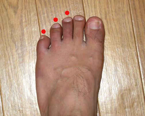 腫れた足の指