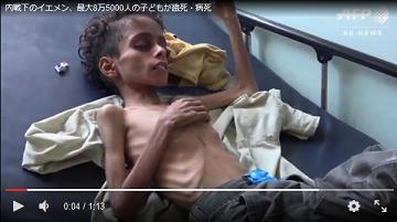 20181123イエメン餓死