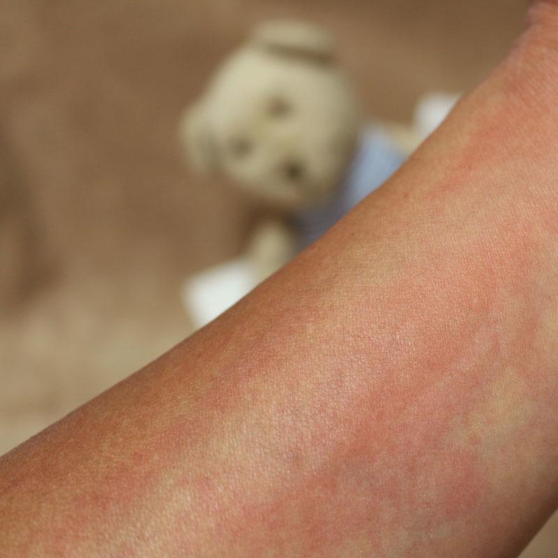 蕁麻疹の腕