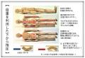 ◆◆◆B背中指圧使用例