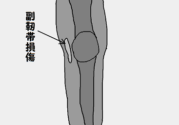 膝 靭帯損傷