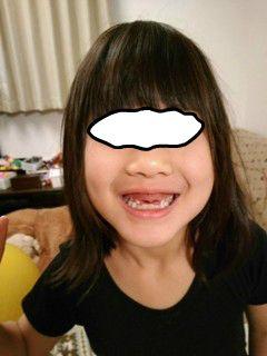 ブログ2 1219歯