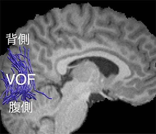 立体視力の個人差に対応した神経線維束