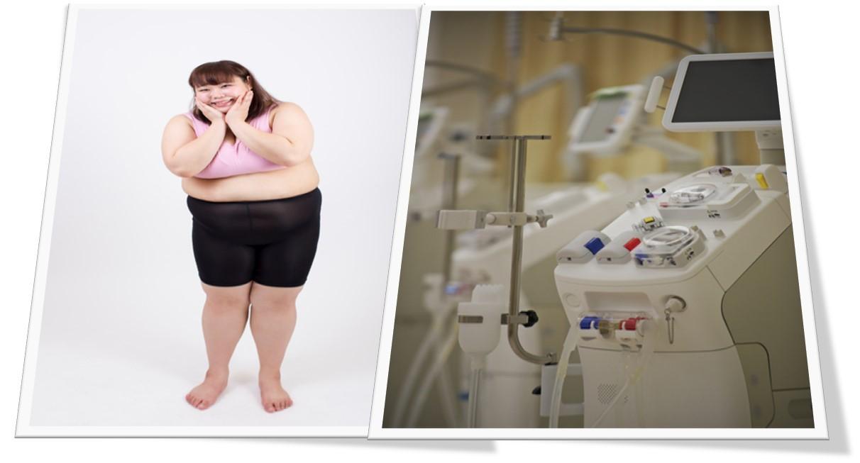 肥満の透析患者