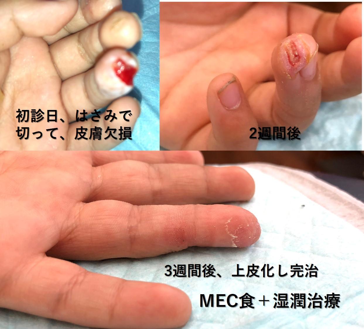 MEC食と湿潤治療