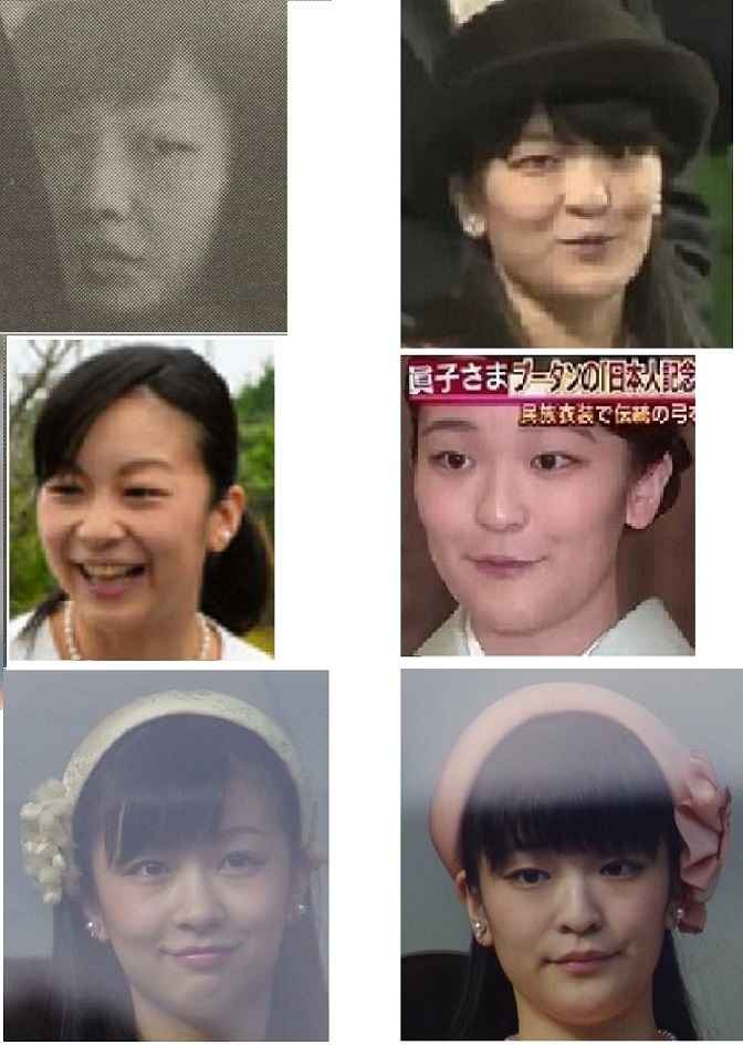 a韓国で佳子さま似にお直しした後、腫れ上がったお顔を記念と証拠を兼ねて帰りのタクシーa
